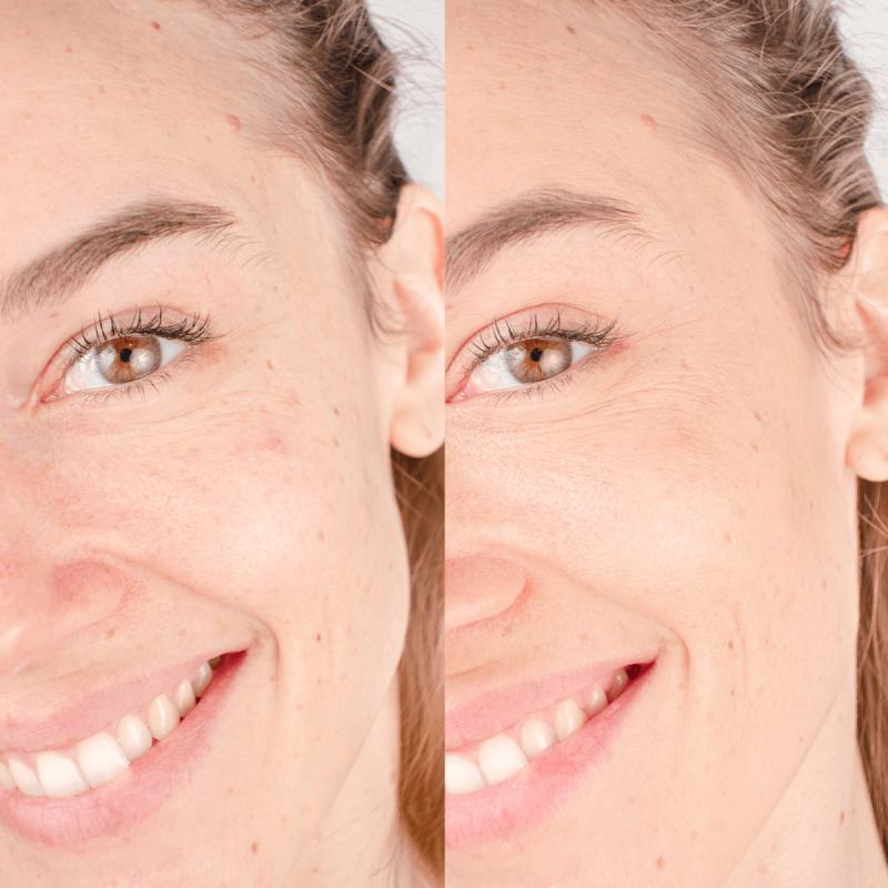 Le Correcteur de Teint camouffle les petites rougeurs et imperfections - MÊME Cosmetics