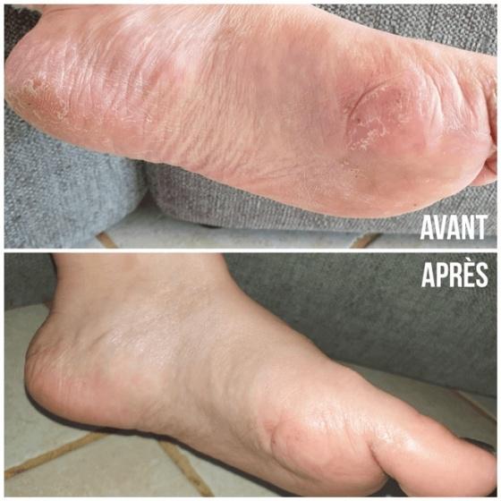 Moisturising Slippers