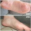 Syndrome main pieds avant après - MÊME