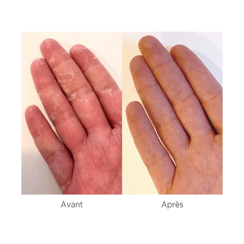 Syndrome mains pieds avant/ après - MÊME Cosmetics
