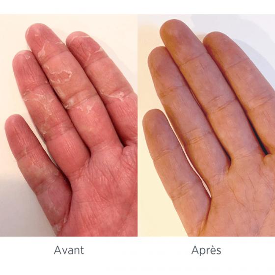 Syndrome mains pieds avant/ après - MÊME