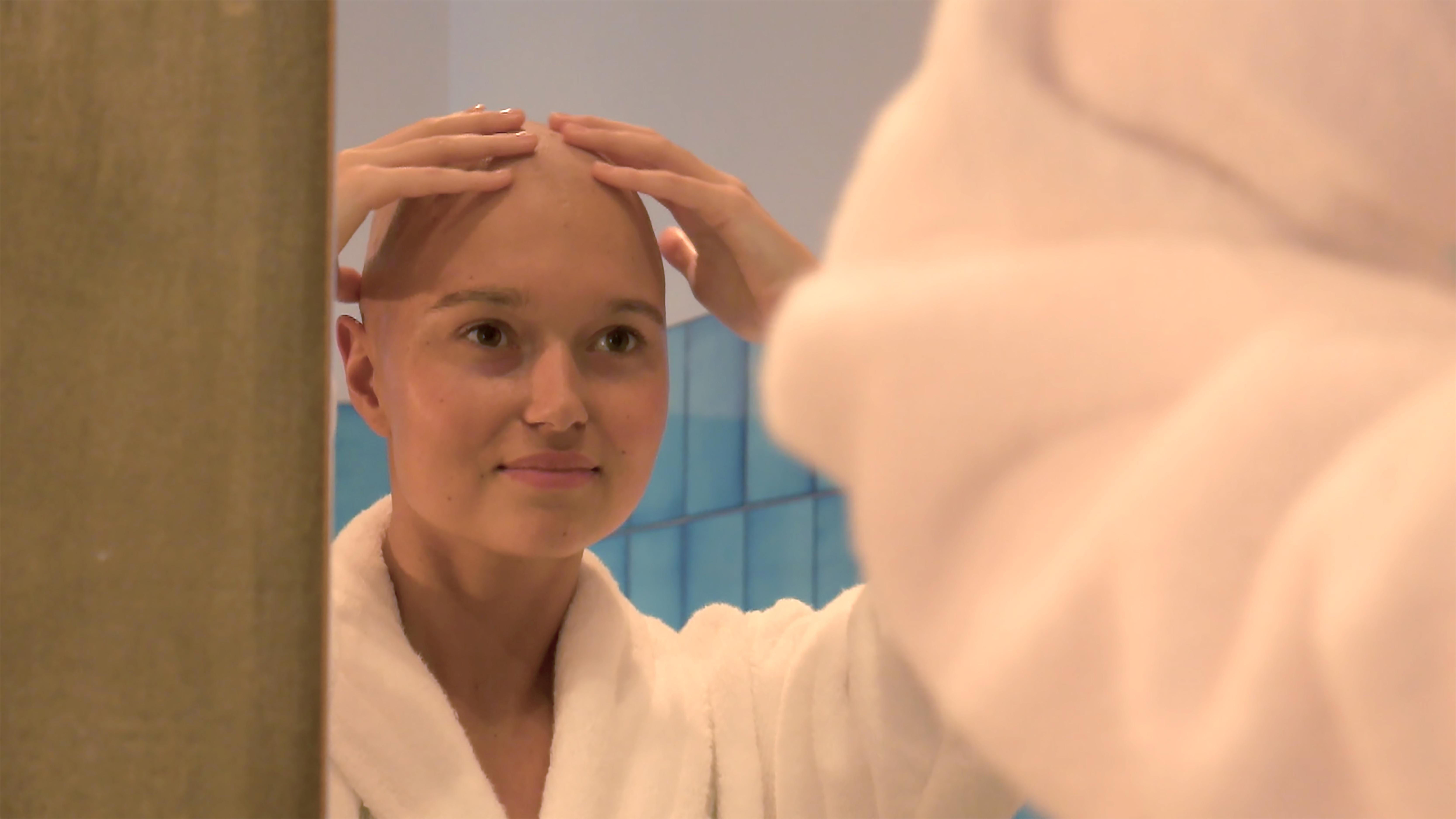 alopécie cancer