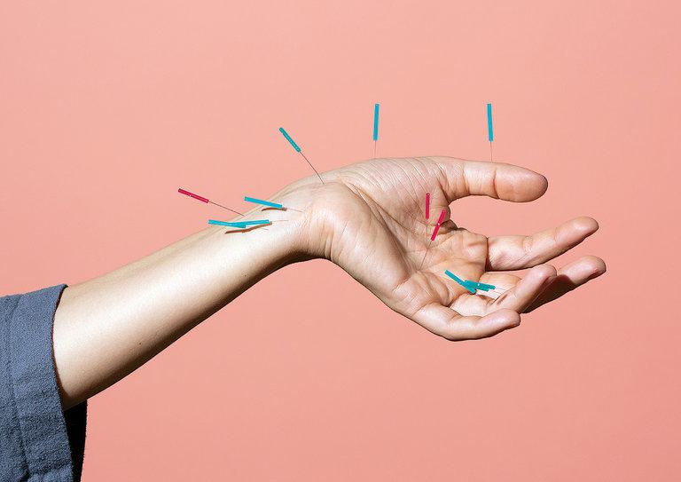 même cosmetics-acupuncture pour soigner cancer