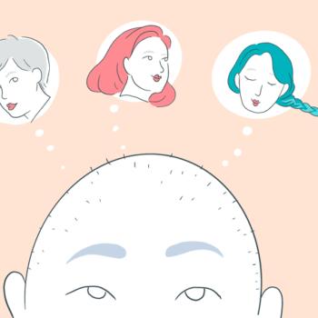 L'alopécie, ou la perte des cheveux, en 10 questions