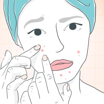 Masque et petits boutons : comment se débarrasser des imperfections et irritations ?