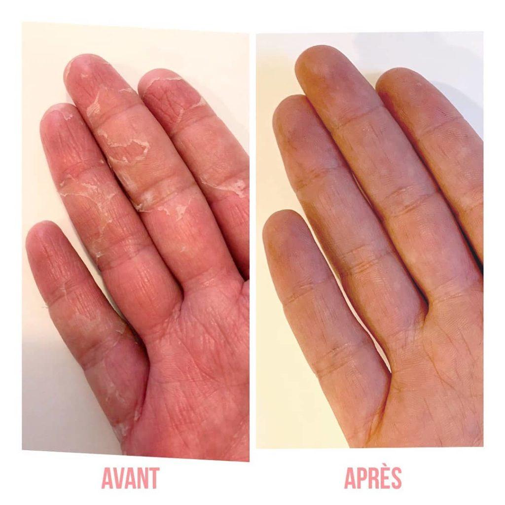 syndrome mains pieds gants de soin Même