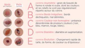 cancer-peau-mélanome-symtômes-abcde-grain-de-beauté-même-cosmetics