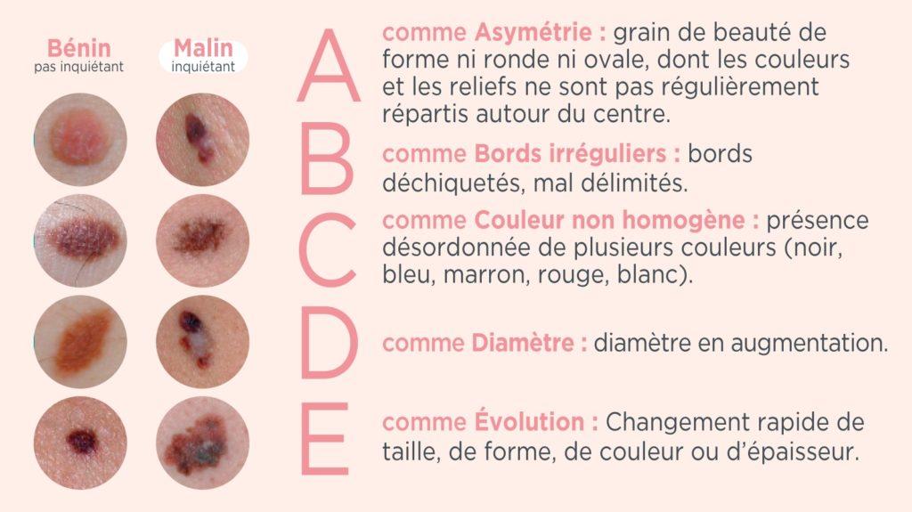 cancer-peau-symptômes-mélanome-même-cosmetics
